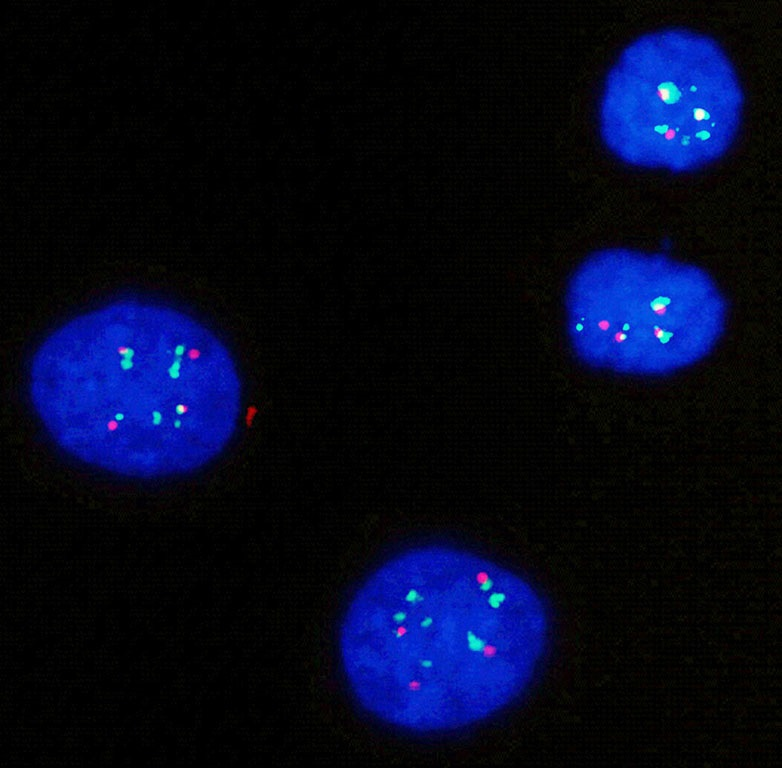 HER2 Green and Chromosome 17 Centromere Red FISH Probe