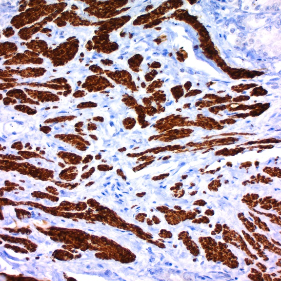 Mouse to Mouse HRP (AEC) Staining System